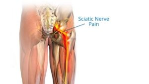 Lower Back Pain Physiotherapy Treatment Exercise Causes